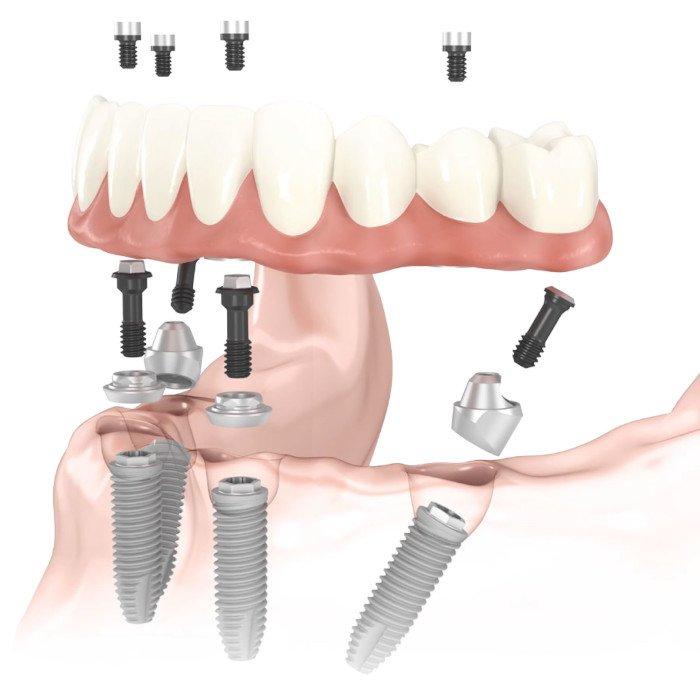 Импланты Nobel Biocare при полном отсутствии зубов