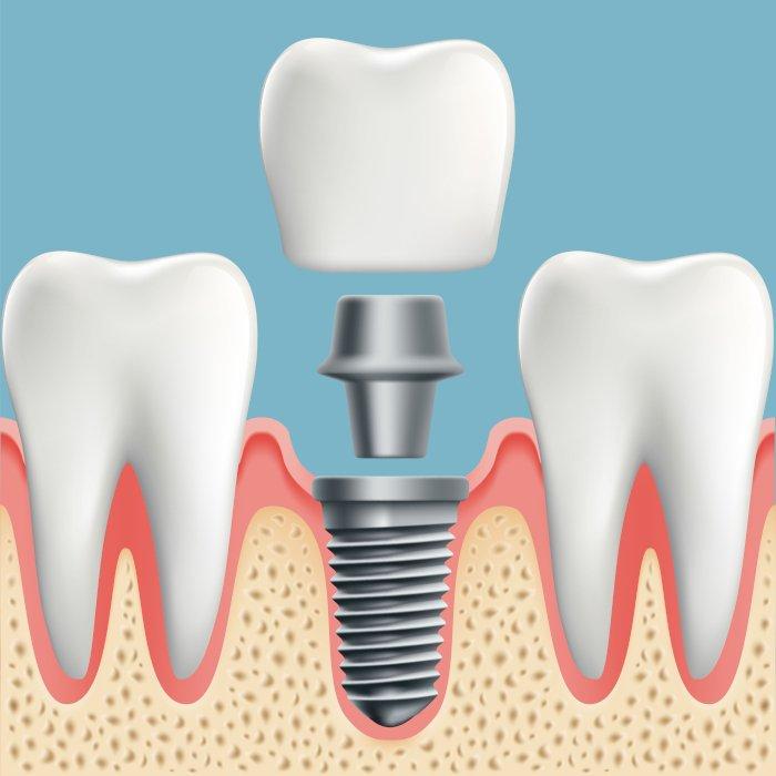 Импланты Nobel Biocare при потере 1 зуба